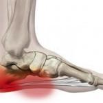 ff heel pain