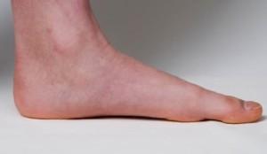 ff flat feet